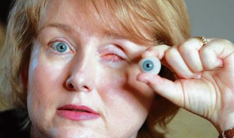 Braintree: Mother loses eye after infection she claims was caused by a contact lens